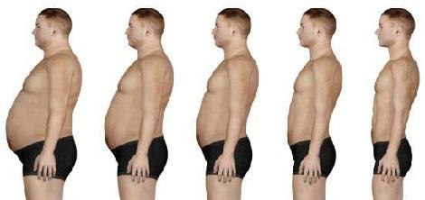 ожирение 2 степени у женщин фото