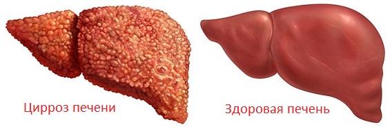 Цирроз печени: симптомы и лечение, фото, признаки Цирроз Печени Фото Живота