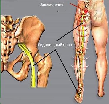 симптомы седалищного нерва