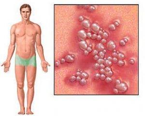 Генитальный герпес - фото, симптомы у женщин и мужчин, лечение
