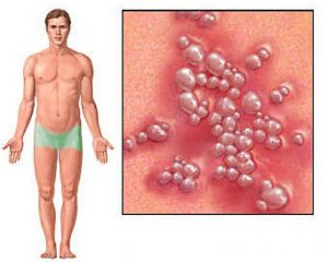 уреаплазмоз симптомы у мужчин фото