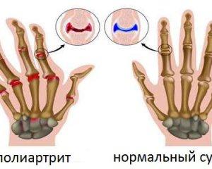 Полиартрит симптомы и лечение