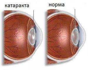 Катаракта - симптомы и лечение, профилактика