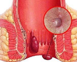 Геморрой: симптомы, фото, лечение, признаки геморроя
