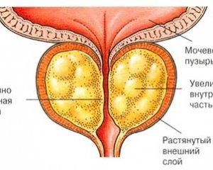 Простатит - симптомы и лечение