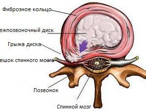 Межпозвоночная грыжа - симптомы, причины и лечение