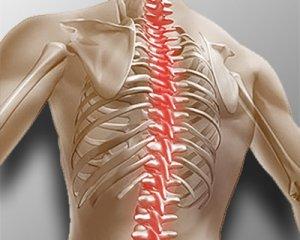 Симптомы и лечение остеохондроза позвоночника