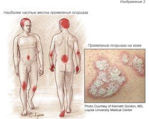 Псориаз - что это за болезнь? Фото, симптомы и лечение