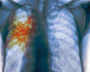 Туберкулез - симптомы и первые признаки