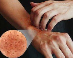 Атопический дерматит: фото, симптомы и лечение  у взрослых