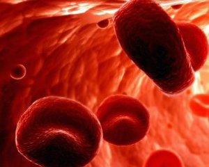 Анемия - симптомы, лечение, что это такое