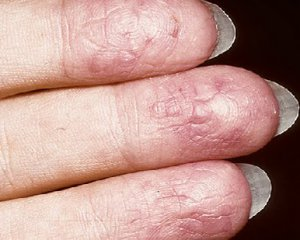 Экзема на руках - чем лечить, симптомы и фото