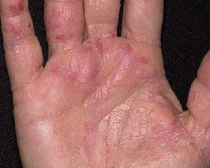 Симптомы болезни на начальных стадиях