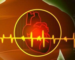 Мерцательная аритмия - симптомы и лечение, что это такое