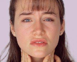 Воспаление гланд - симптомы и лечение, фото