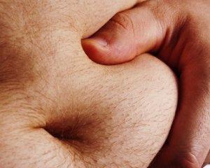 Ожирение - причины и лечение