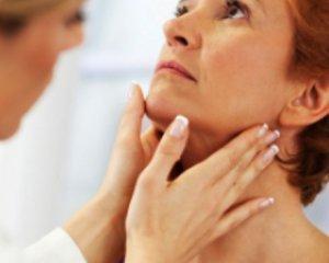 Гипотиреоз - симптомы у женщин, лечение