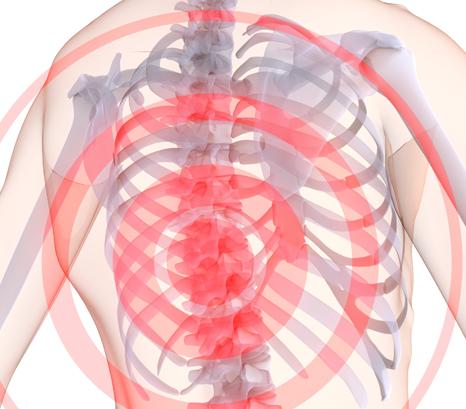 Грудной остеохондроз симптомы и лечение в домашних условиях