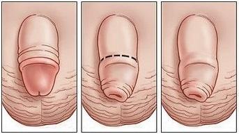Правильное открытие пениса у новорожденных