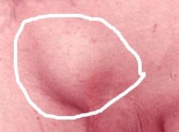 межпаховая грыжа у мужчин фото