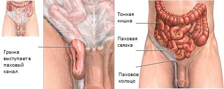 Как выглядит паховая грыжа у мужчин и как ее определить