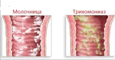Фото как выглядит молочница фото
