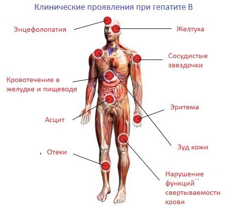 Гепатит В: симптомы и лечение, как передается гепатит В