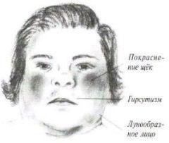 Синдром Кушинга: симптомы болезни Иценко Кушинга у женщин, диагностика, лечение
