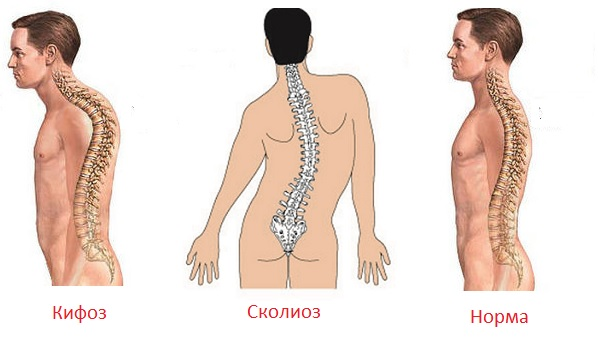 Кифоз грудного отдела позвоночника: фото, симптомы, лечение