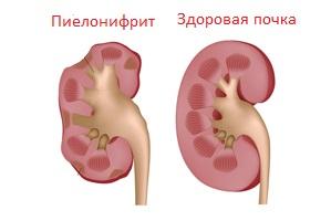 Острый пиелонефрит - симптомы, лечение и антибиотики, диета