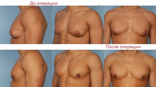 Жирные женские соски