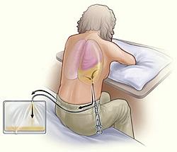 Плеврит легких - симптомы и лечение, что это такое