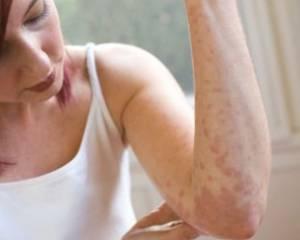 Симптомы и лечение опоясывающего герпеса