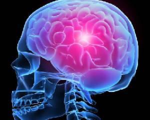 Геморрагический инсульт - симптомы, последствия, прогноз