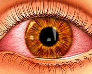 Конъюнктивит у взрослых - фото, симптомы и лечение