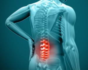 Радикулит - симптомы, причины и лечение