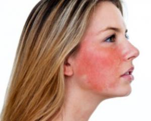 Розацеа на лице - симптомы и лечение, фото