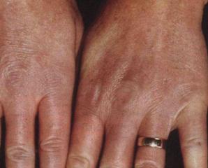Склеродермия признаки, стадии, фото (часть 1)