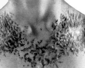 Ихтиоз - симптомы и лечение, фото