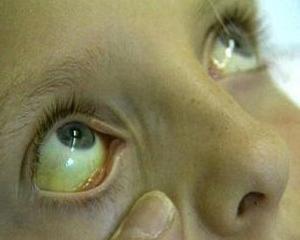 Болезнь Жильбера - симптомы, лечение