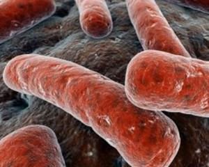 Дисбактериоз влагалища - симптомы и лечение