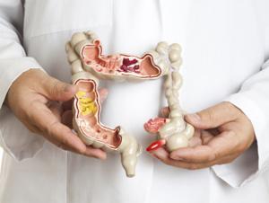 Энтероколит - симптомы у взрослых, лечение