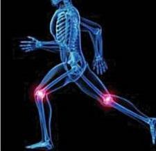 Причины, симптомы и лечение остеоартроза