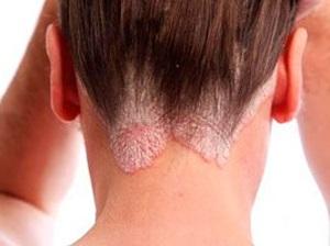 Себорея кожи головы - фото, лечение, симптомы