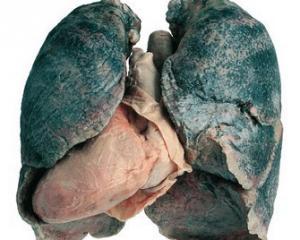 Саркоидоз легких - что это такое, причины, лечение