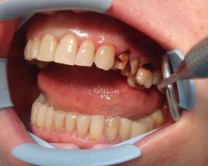 Разрушение корня зуба симптомы