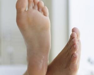 Микозы - фото, лечение, симптомы