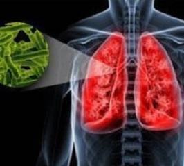 Туберкулез легких - симптомы и лечение у взрослых
