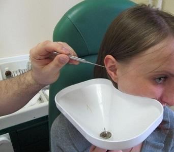 Как промывать пробки в ушах в домашних условиях 234