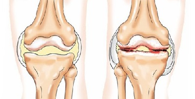 Гонартроз 1 степени коленного сустава — лечение и признаки